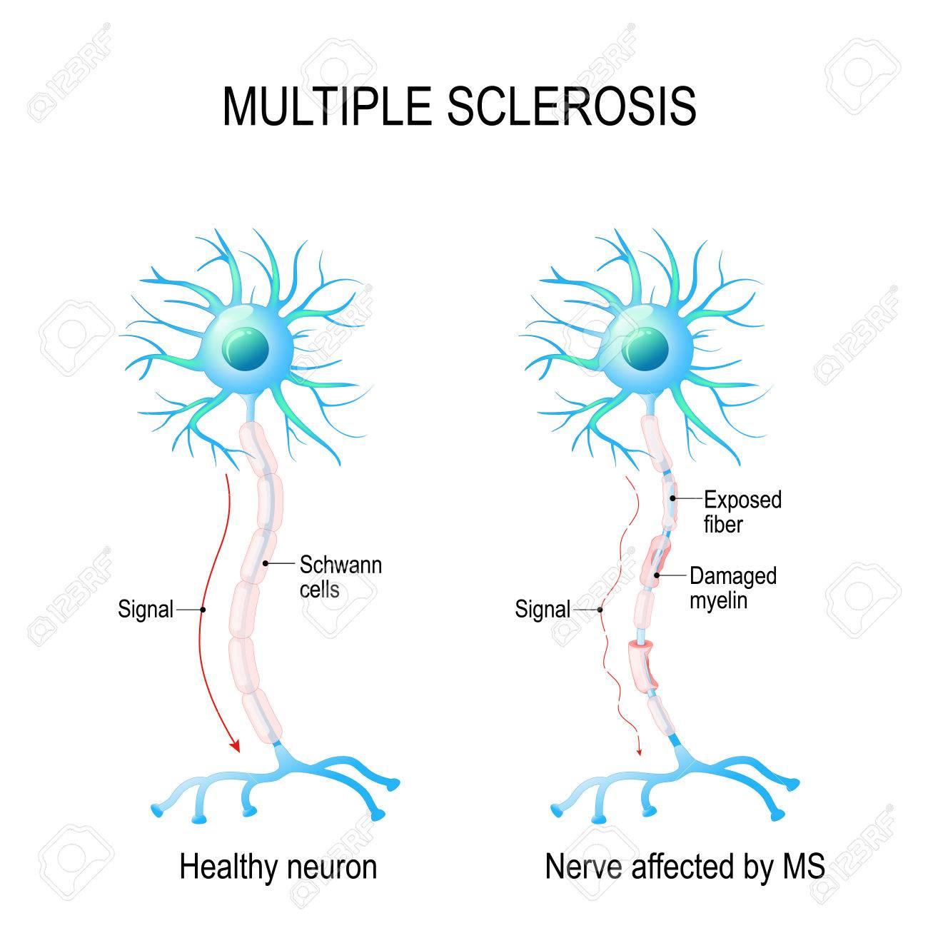 Multiple Sklerose Oder MS. Autoimmunerkrankung. Die Nerven Des ...
