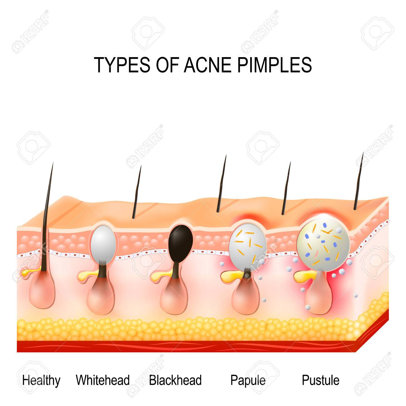 Types of acne pimples. Healthy skin, Whiteheads and Blackheads, Papules and Pustules - 87973489
