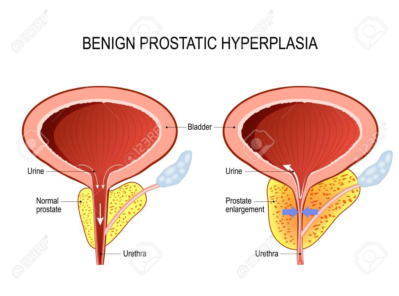 diagrama del área de la próstata