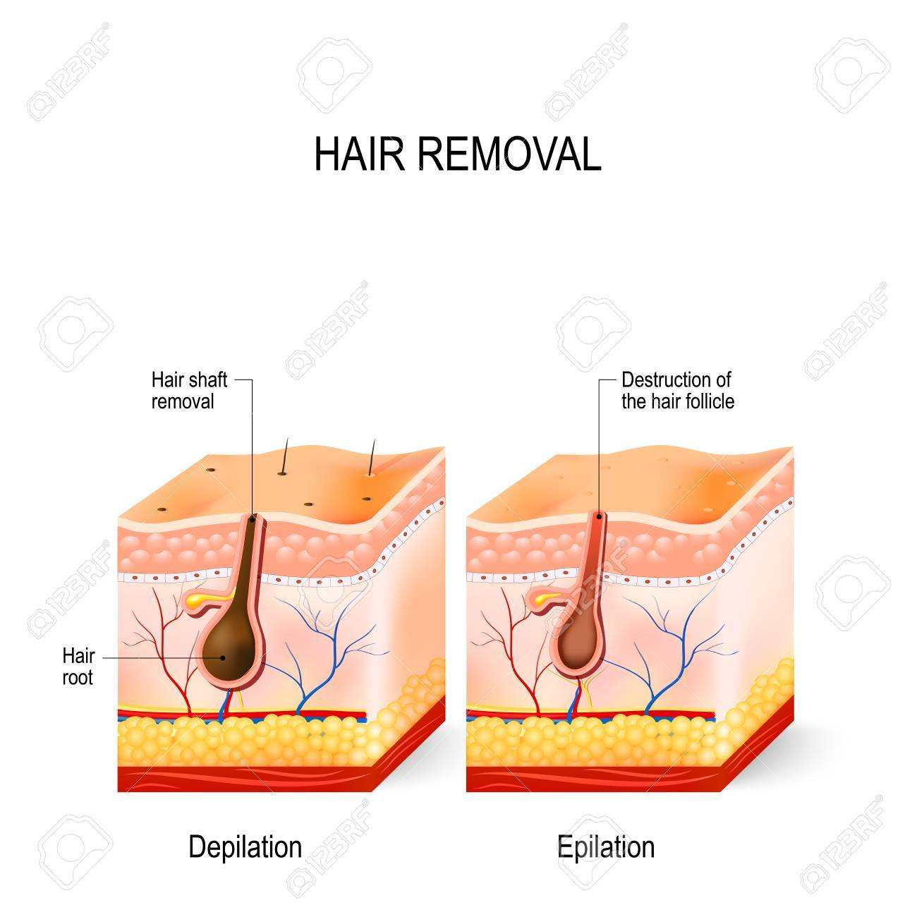Hair removal the difference between epilation and depilation hair removal the difference between epilation and depilation skincare stock vector 88992208 pooptronica Choice Image