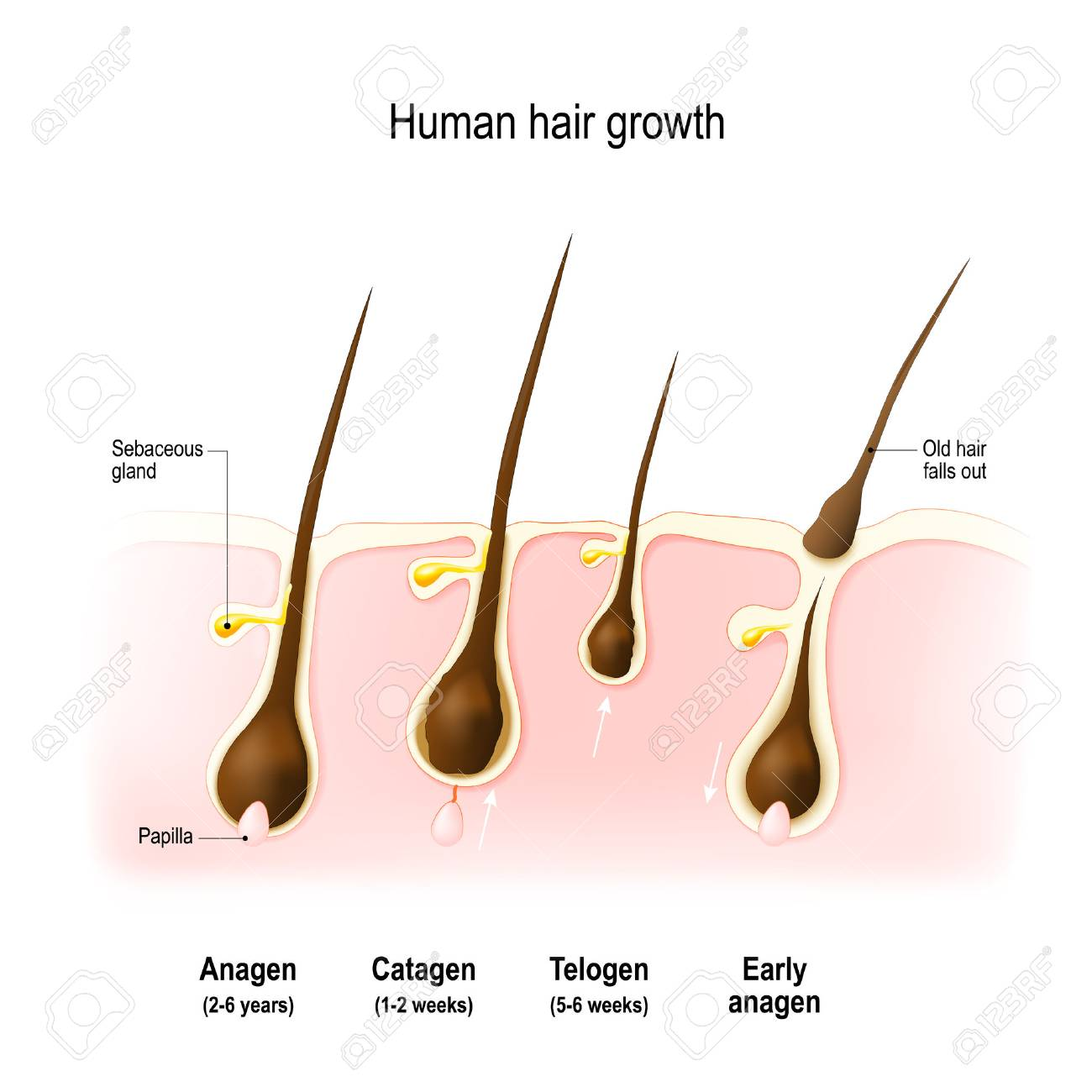 Hair growth. anagen is the growth phase; catagen is the regressing phase; and telogen, the resting phase. Vector diagram - 89044670