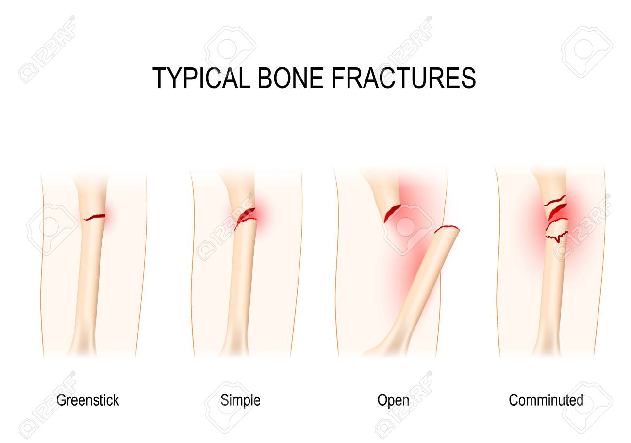 Typical bone fractures: Greenstick, Simple, Open, Comminuted. Vector scheme - 89703812
