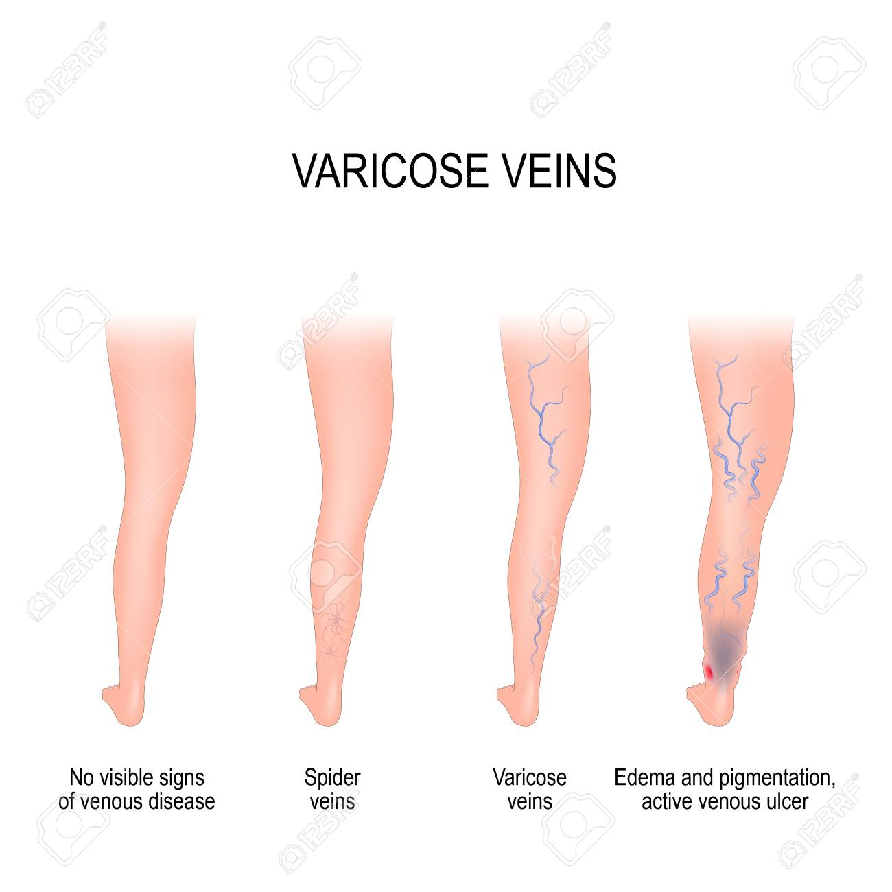 stages of varicose from no visible signs of venous disease tostages of varicose from no visible signs of venous disease to spider veins, edema