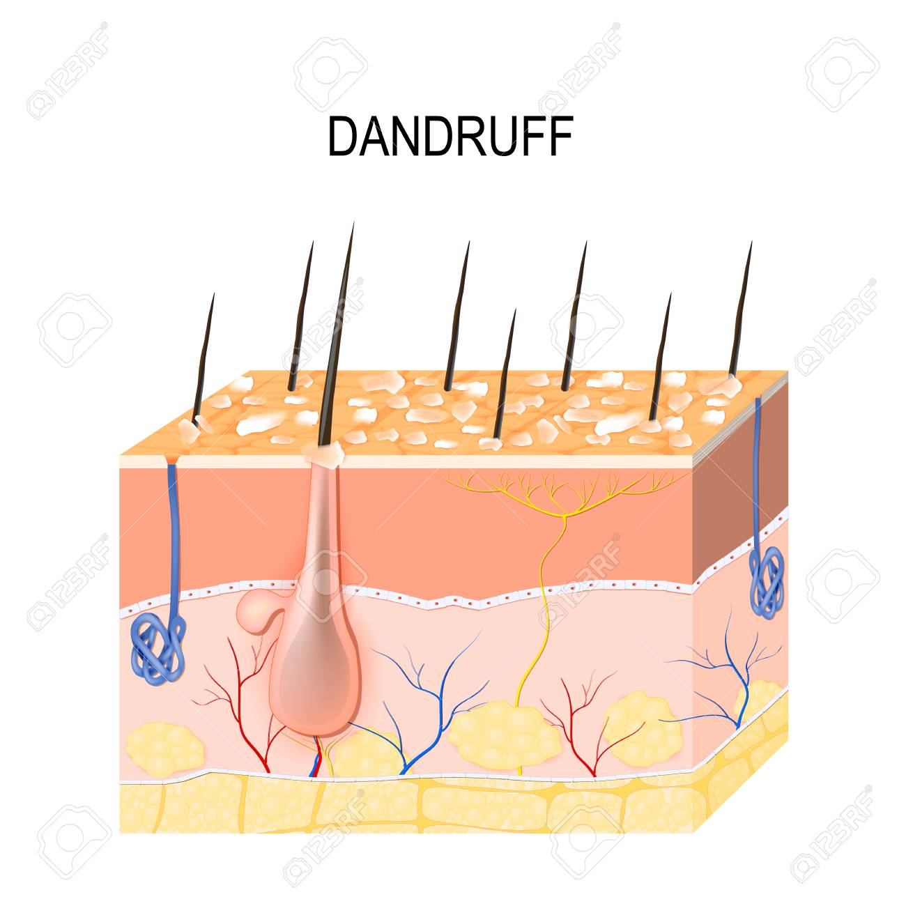 dandruff  seborrheic dermatitis can occur due to dry skin, bacteria and  fungus on the