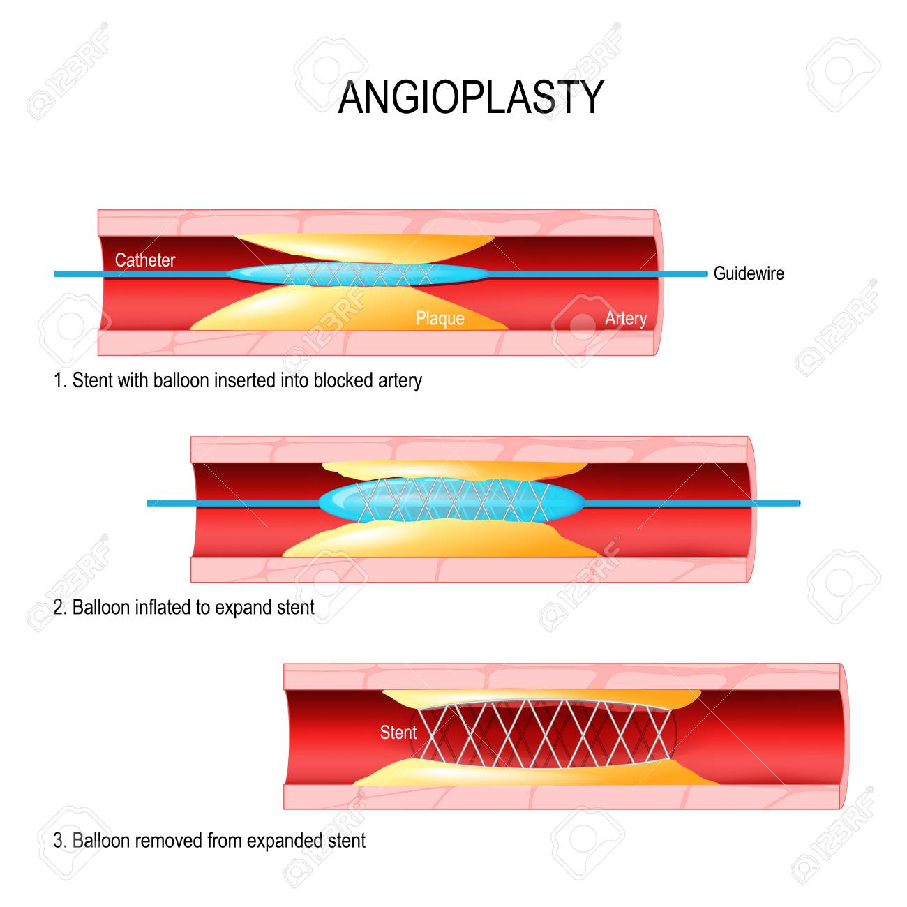 Angioplasty. Stent Implantation. Deflated balloon catheter inserted into a coronary artery narrowed by plaque. the balloon is inflated, compressing the plaque against the artery wall. Stents - tubes made of metal mesh. The stent remains in the artery after the procedure to help keep the artery open. - 90514051