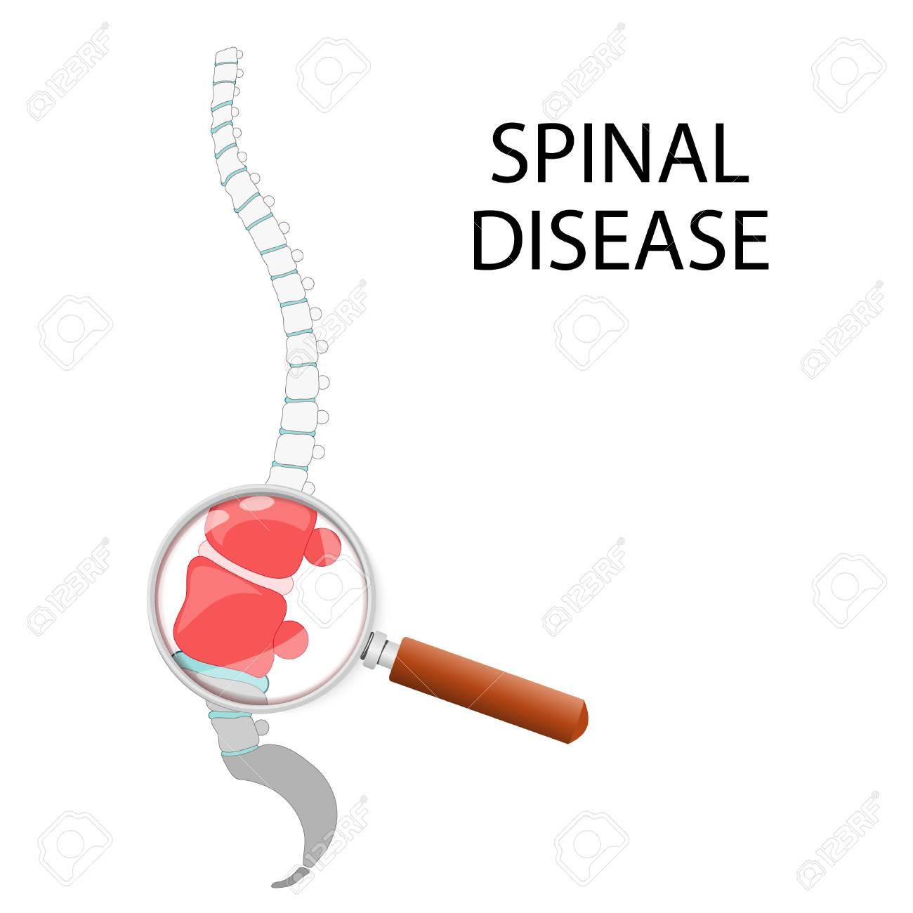 Enfermedad De La Espina Dorsal Sección Lumbar A Través De Una Lupa ...