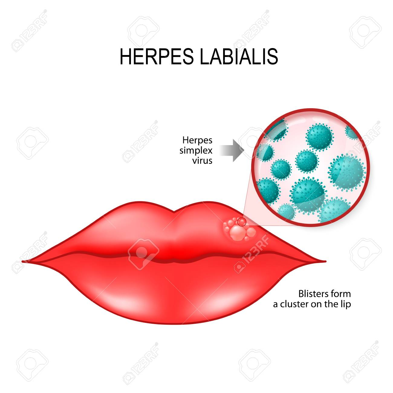 Herpes labialis (blisters) on the lip  cause is herpes simplex