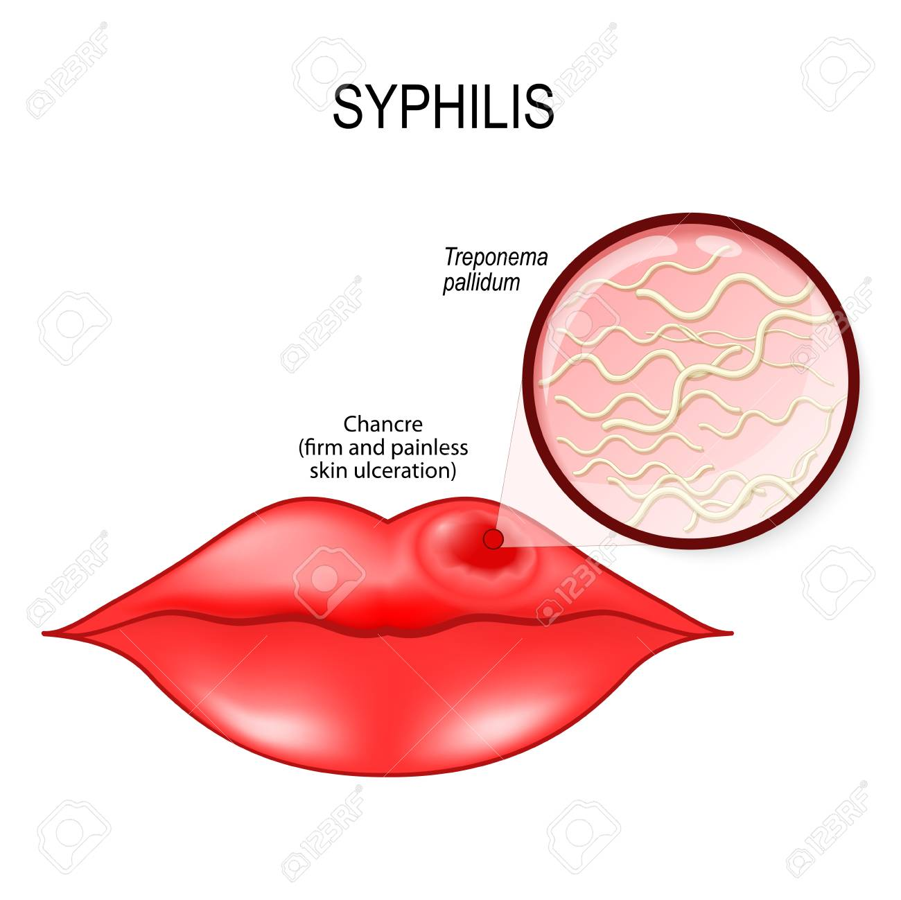 Lips Skin Diagram All Kind Of Wiring Diagrams