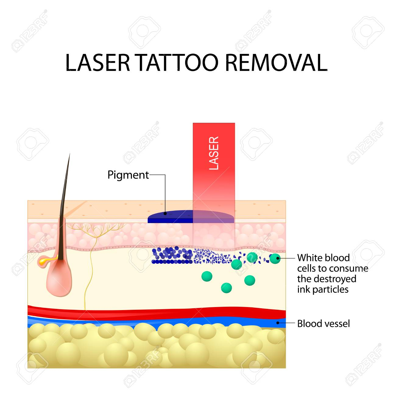 Laser tattoo removal. How Does Laser Tattoo Removal Work. Dark ink absorb light and break down. White blood cells to consume the destroyed ink particles and carry them to the liver. - 91015610
