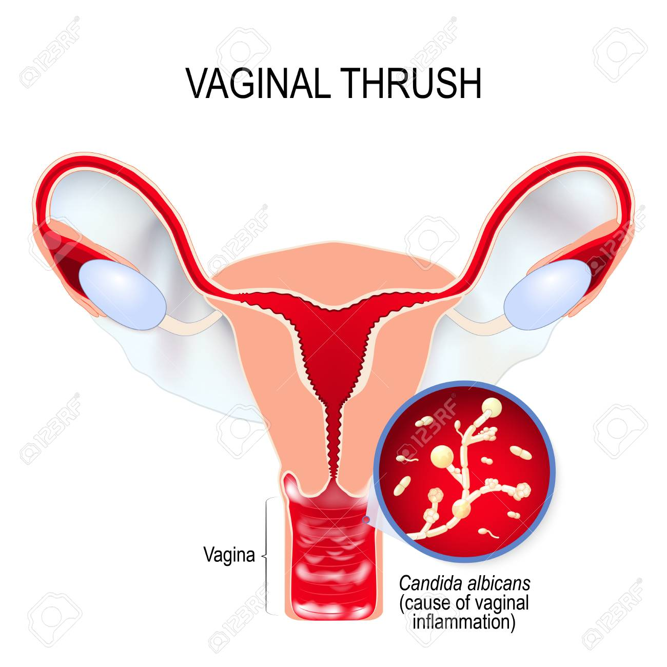Hairy vagina galitsin