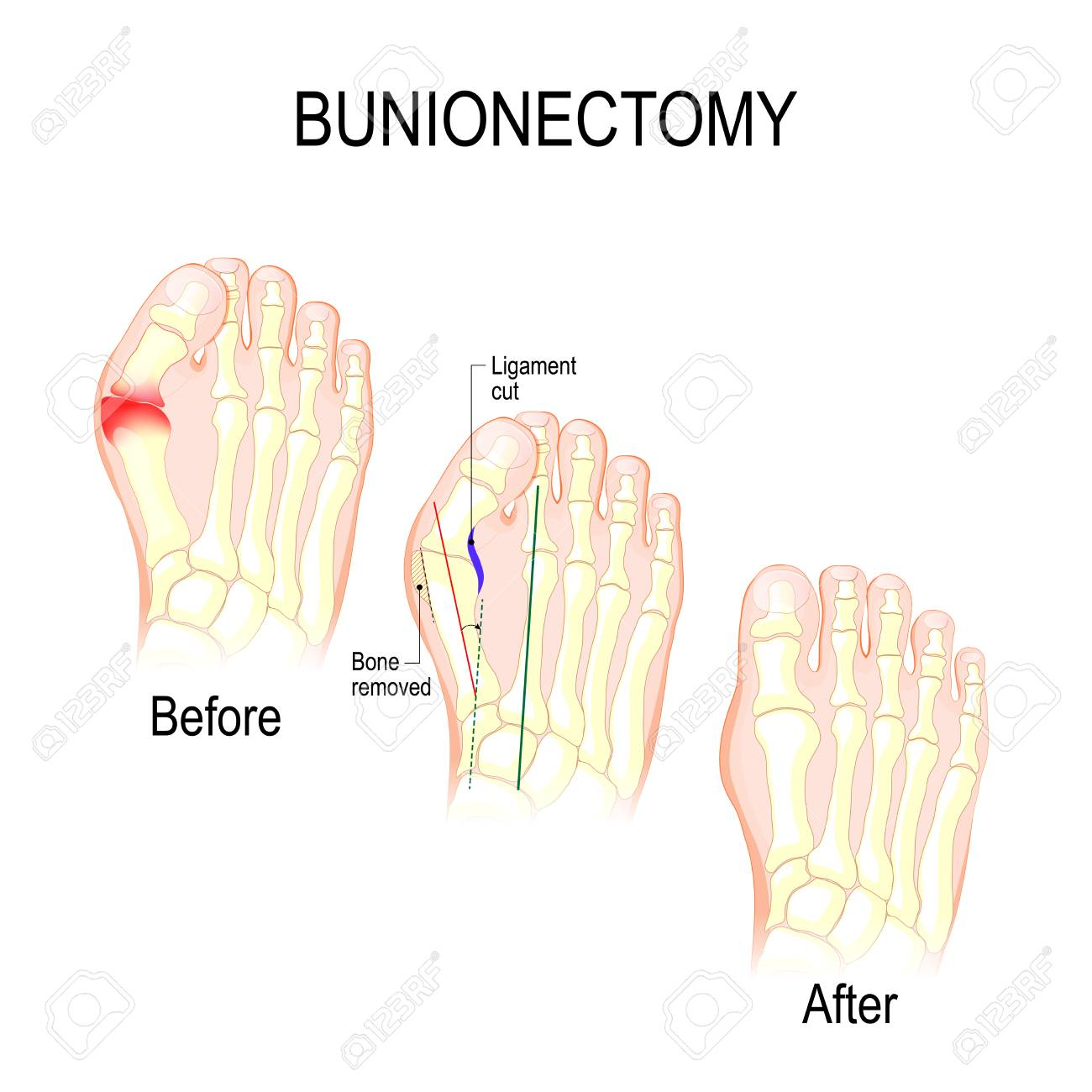 Bunionectomy Is A Procedure To Correct Of Pathologies And Deformity