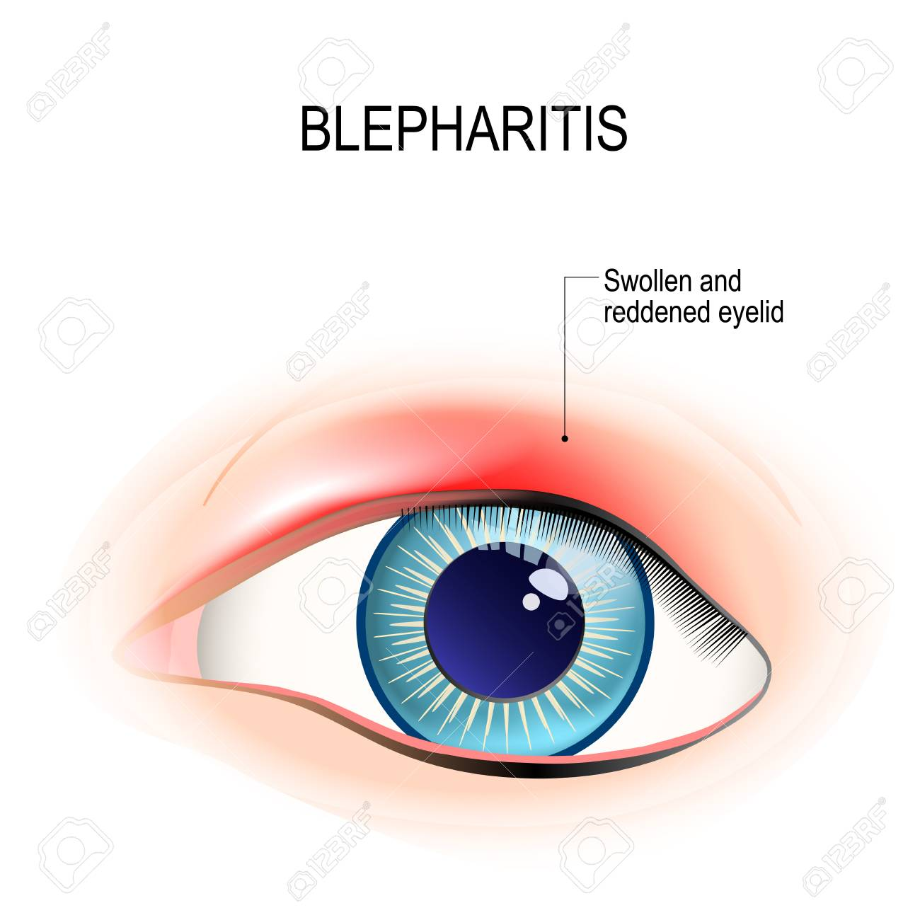 Eye of human. Blepharitis is a inflammation, and reddening of the eyelid. Human anatomy. Vector diagram for educational, and medical use. - 92465885