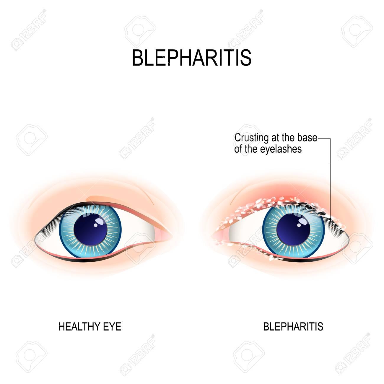 Augen Des Menschen. Blepharitis Ist Eine Entzündung Des Augenlids ...