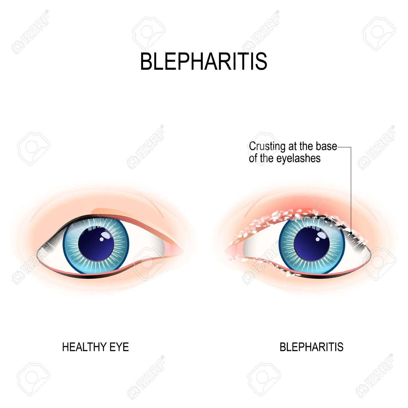 Eyes Of Human. Blepharitis Is A Inflammation Of The Eyelid. Crusting ...
