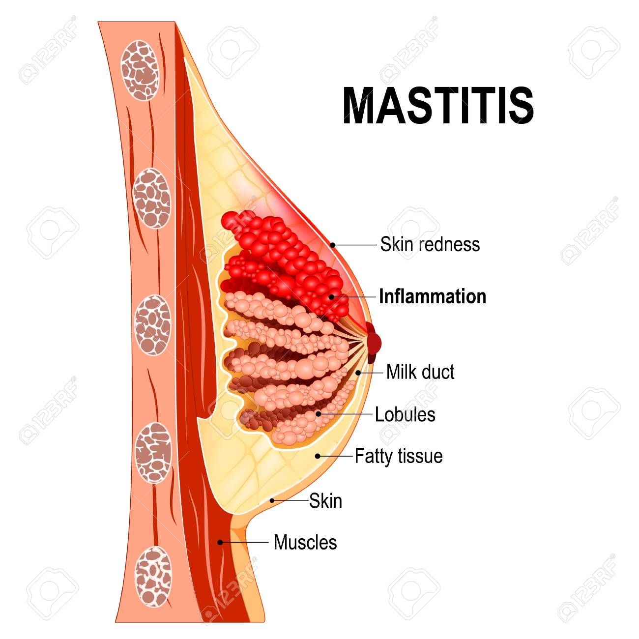 Mastitis. Cross-section Of The Mammary Gland With Inflammation ...