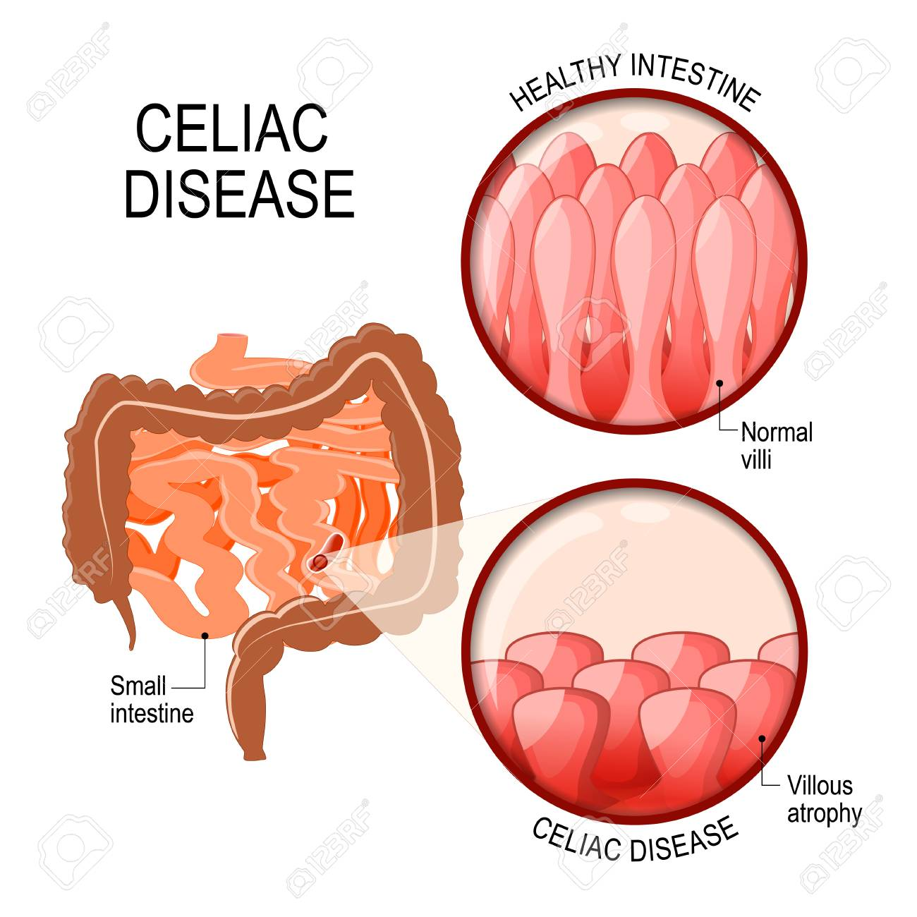 celiac disease small intestinal with normal villi, and villous villi in small intestine in celiac disease celiac disease small intestinal with normal villi, and villous atrophy diagram showing changes