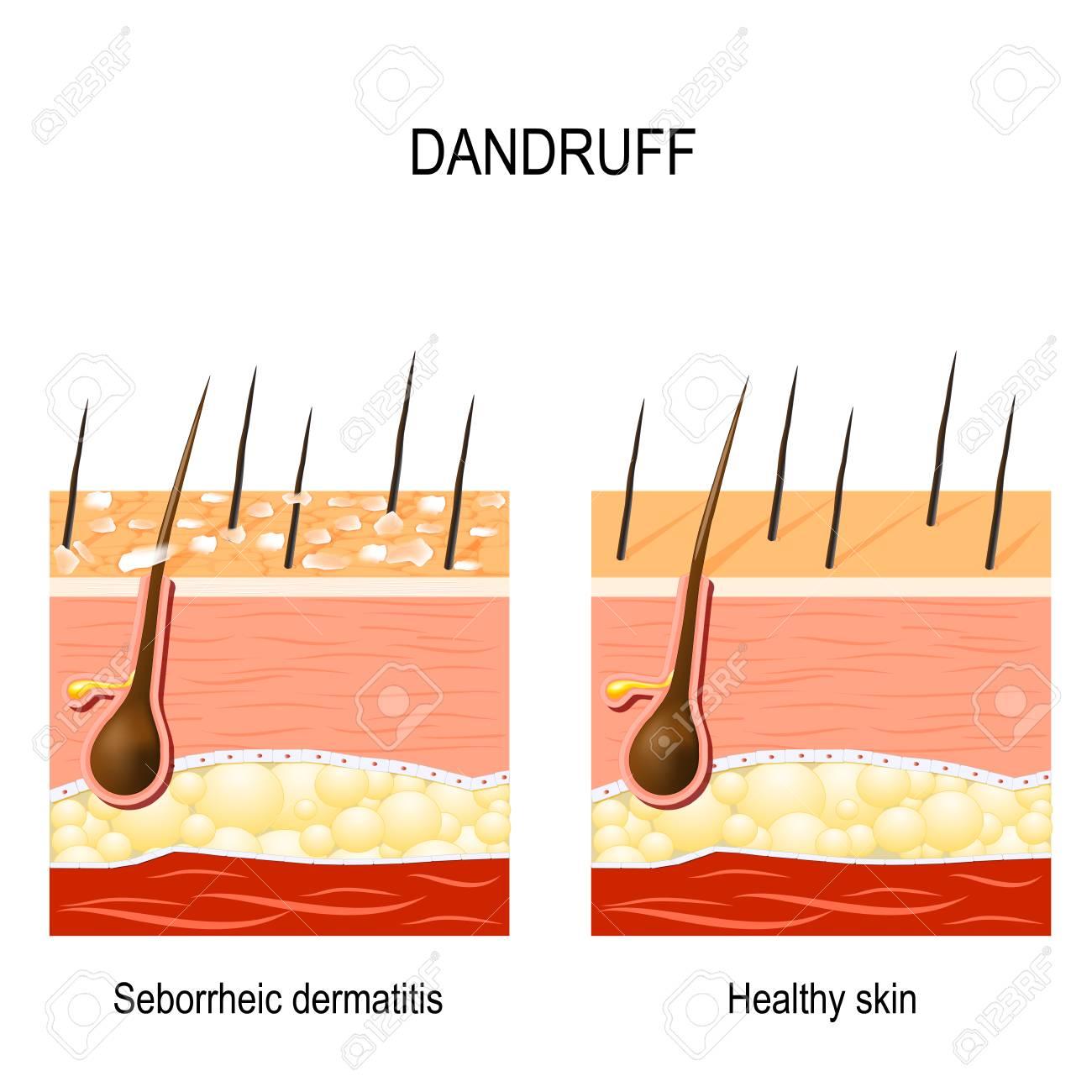 Dandruff  seborrheic dermatitis can occur due to dry skin, bacteria
