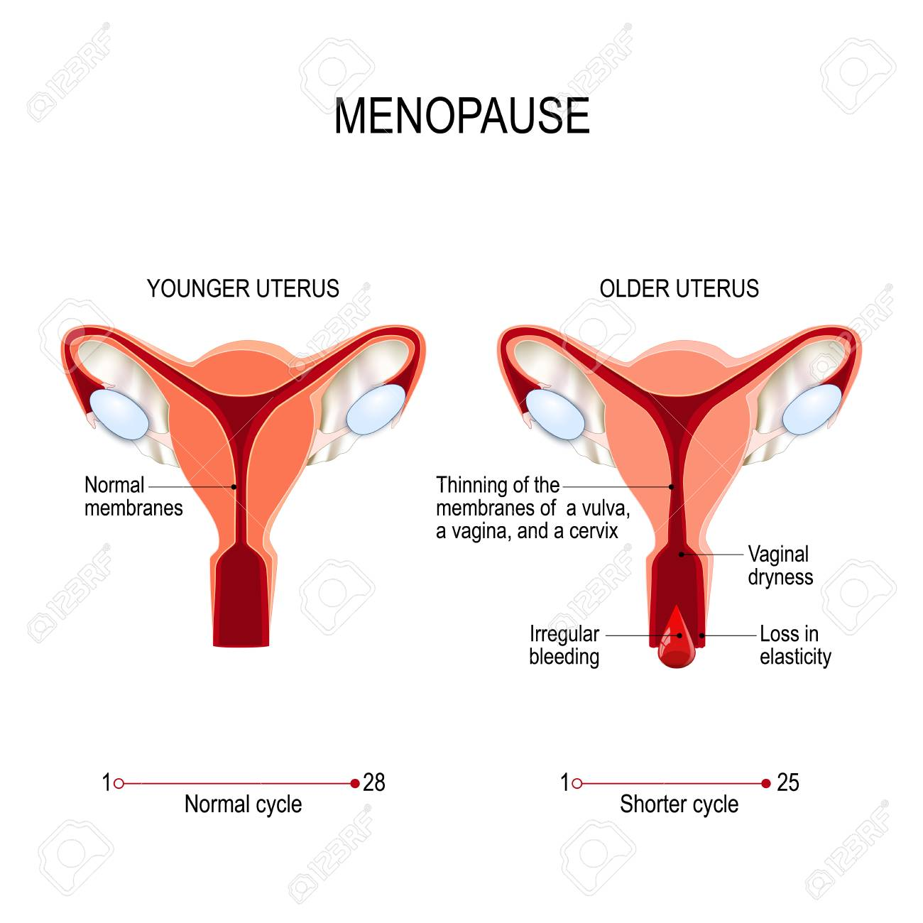 Younger And Older Women Uterus Menopause Or Climacteric Vector
