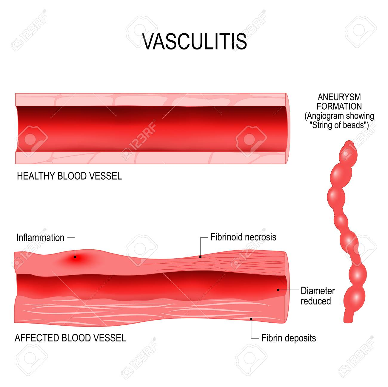 inflammation of blood vessels
