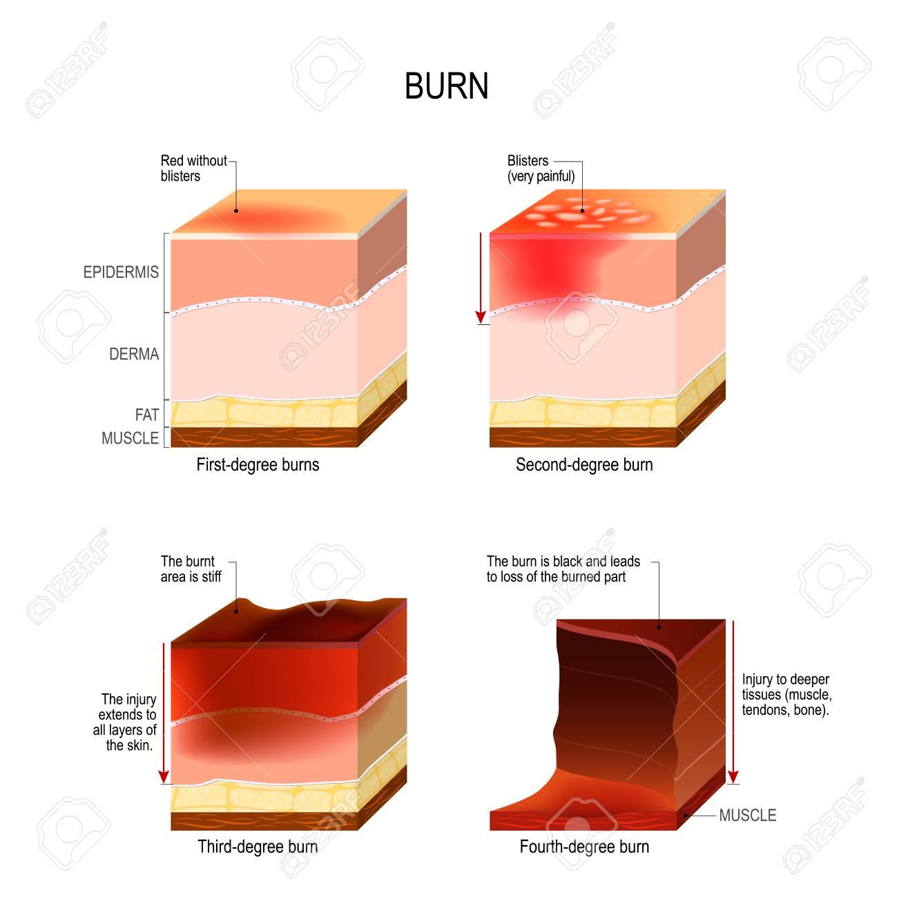 skin burn. four degrees of burns. type of injury to skin. step of burn - 101874187