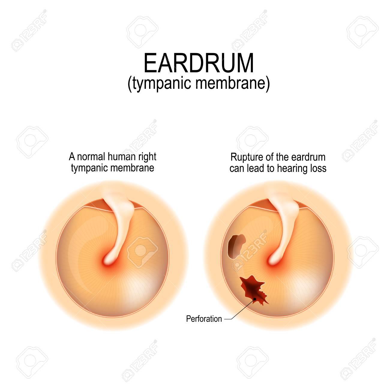 Ruptured Eardrum. Anatomy Of The Humans Eardrum. Healthy And ...