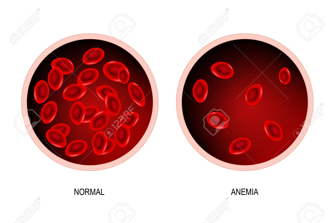 blood of healthy human and blood vessel with anemia. Anemia is a decrease in the total amount of red blood cells or hemoglobin in the blood. Vector illustration. - 103865198