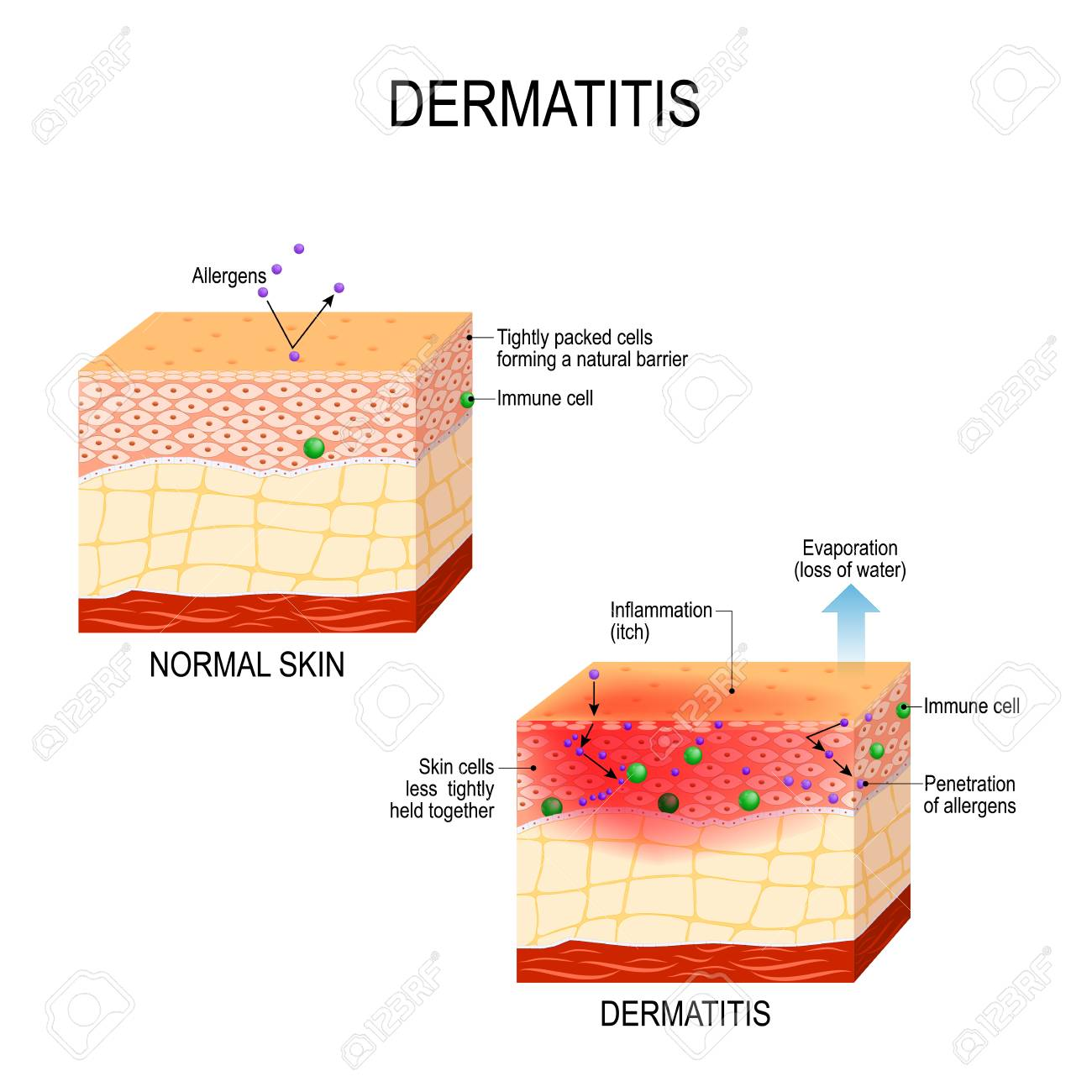 Atopic dermatitis (atopic eczema)  Healthy skin and cross-section