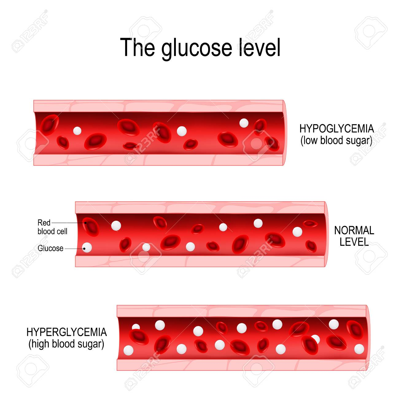 Glucose in the blood vessel  normal level, hyperglycemia (high