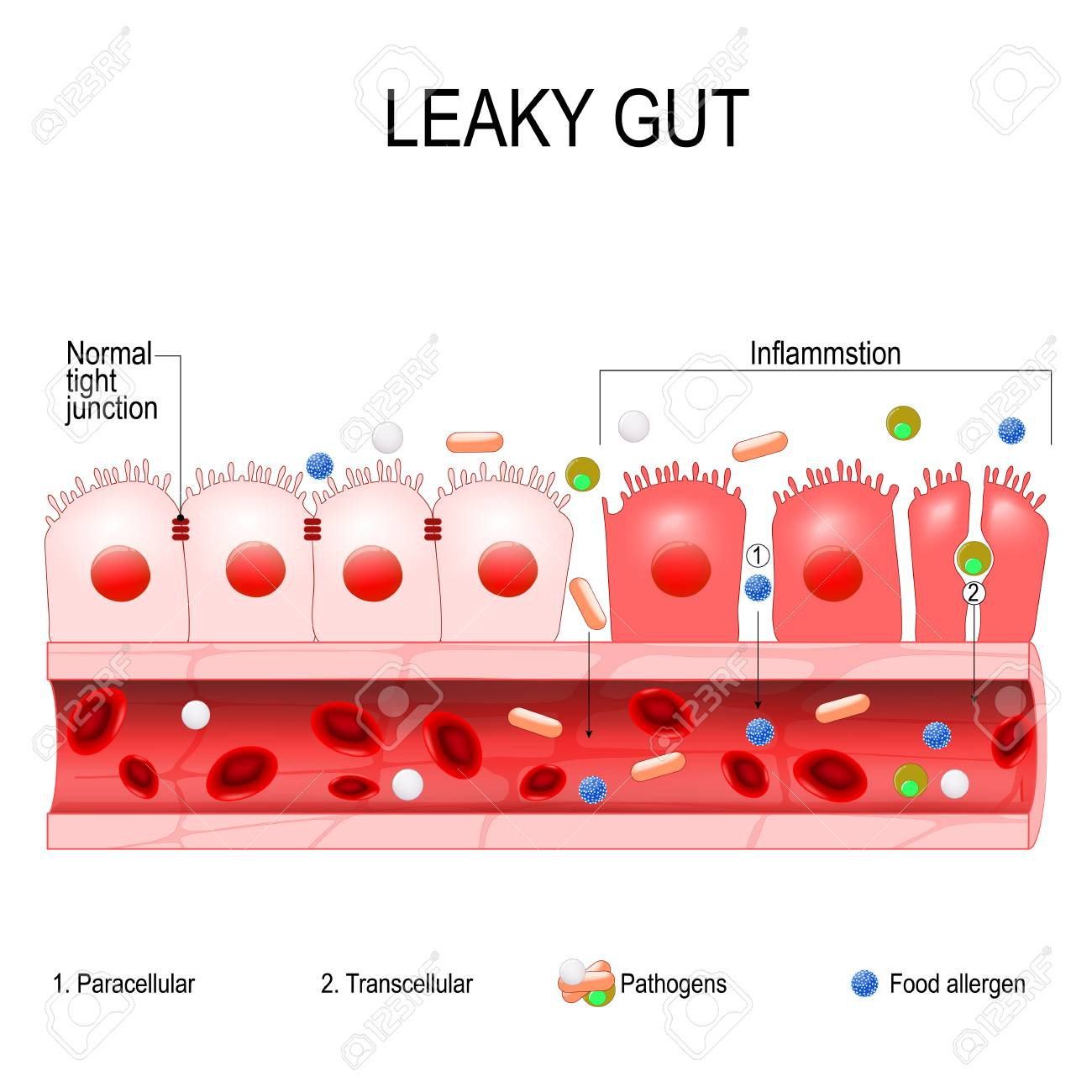 leaky gut cells on gut lining held tightly together in intestine celiac disease in adults leaky gut cells on gut lining held tightly together in intestine with celiac disease and gluten sensitivity these tight junctions come apart autoimmune