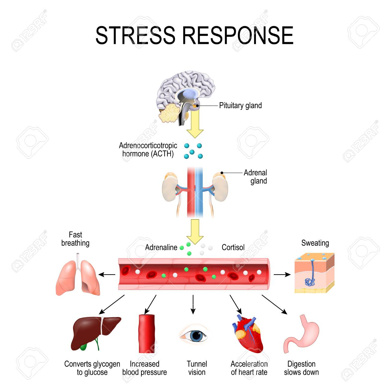 Stress response. Activation of the stress system. Stress is a main cause of high levels of adrenaline and cortisol secretion. hormones that produced by the medulla, and cortex of adrenal. - 128230631