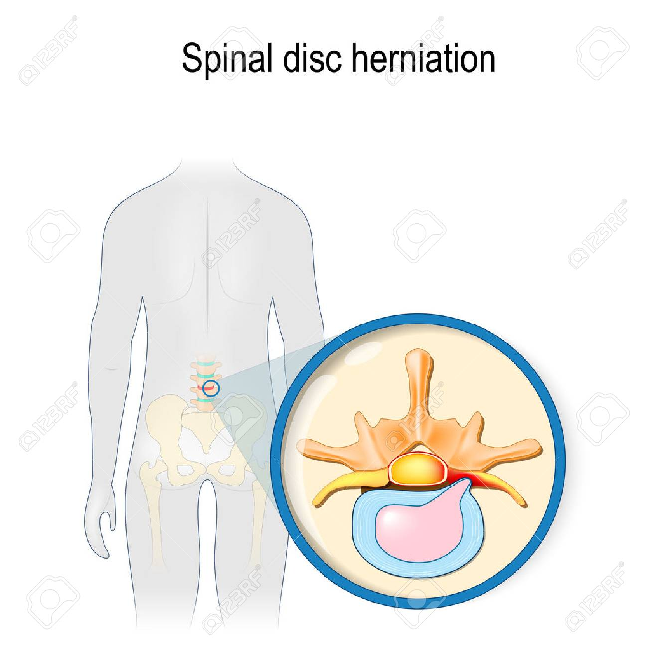 Spinal disc herniation. Back pain. Human silhouette with highlighted (red color) lumbar spine and Pelvis. Prolapse of intervertebral disc close-up. Vector illustration for your design, educational, biology, scientific, and medical use. - 119627976