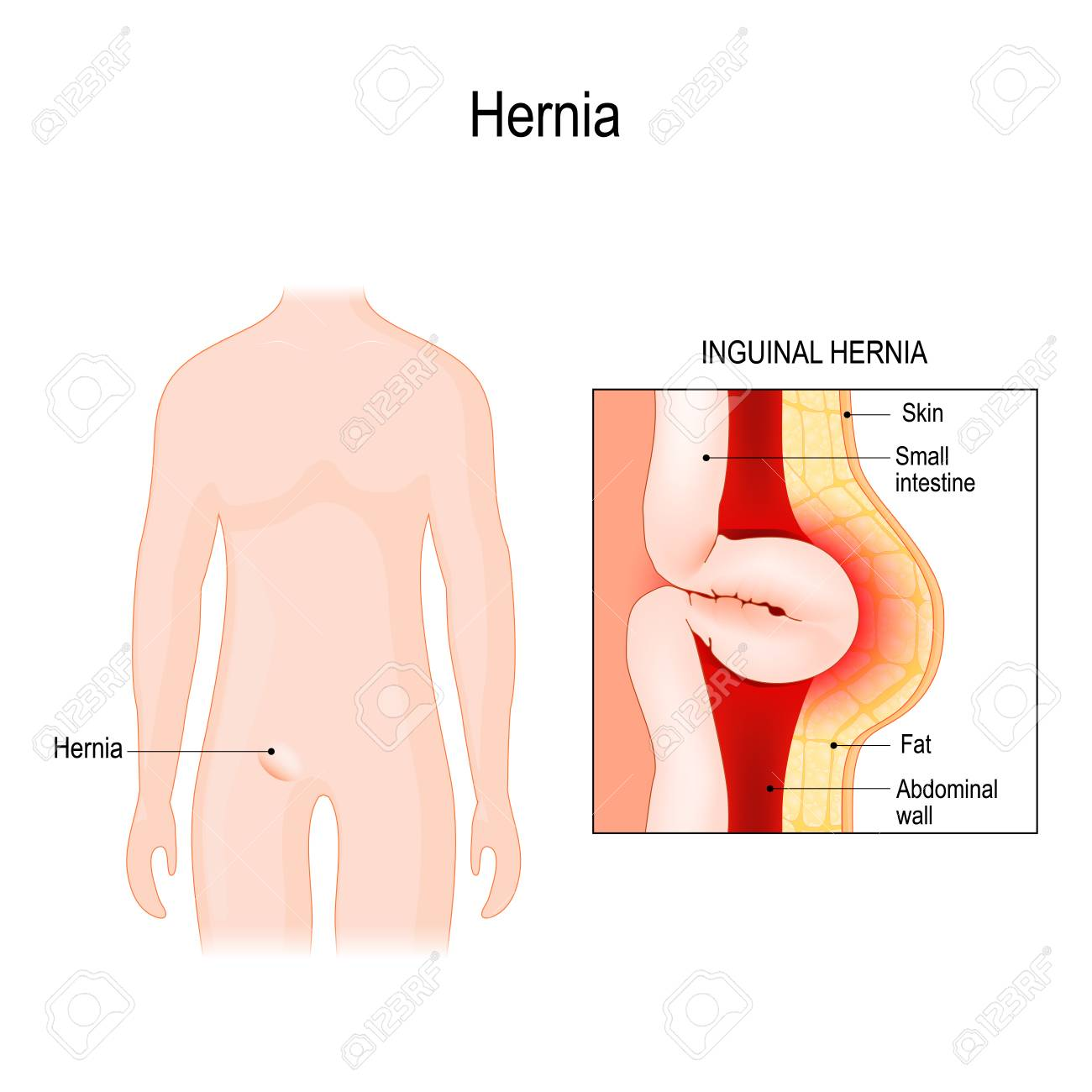 Inguinal Hernia  bowel exit through the wall of the abdomen cavity