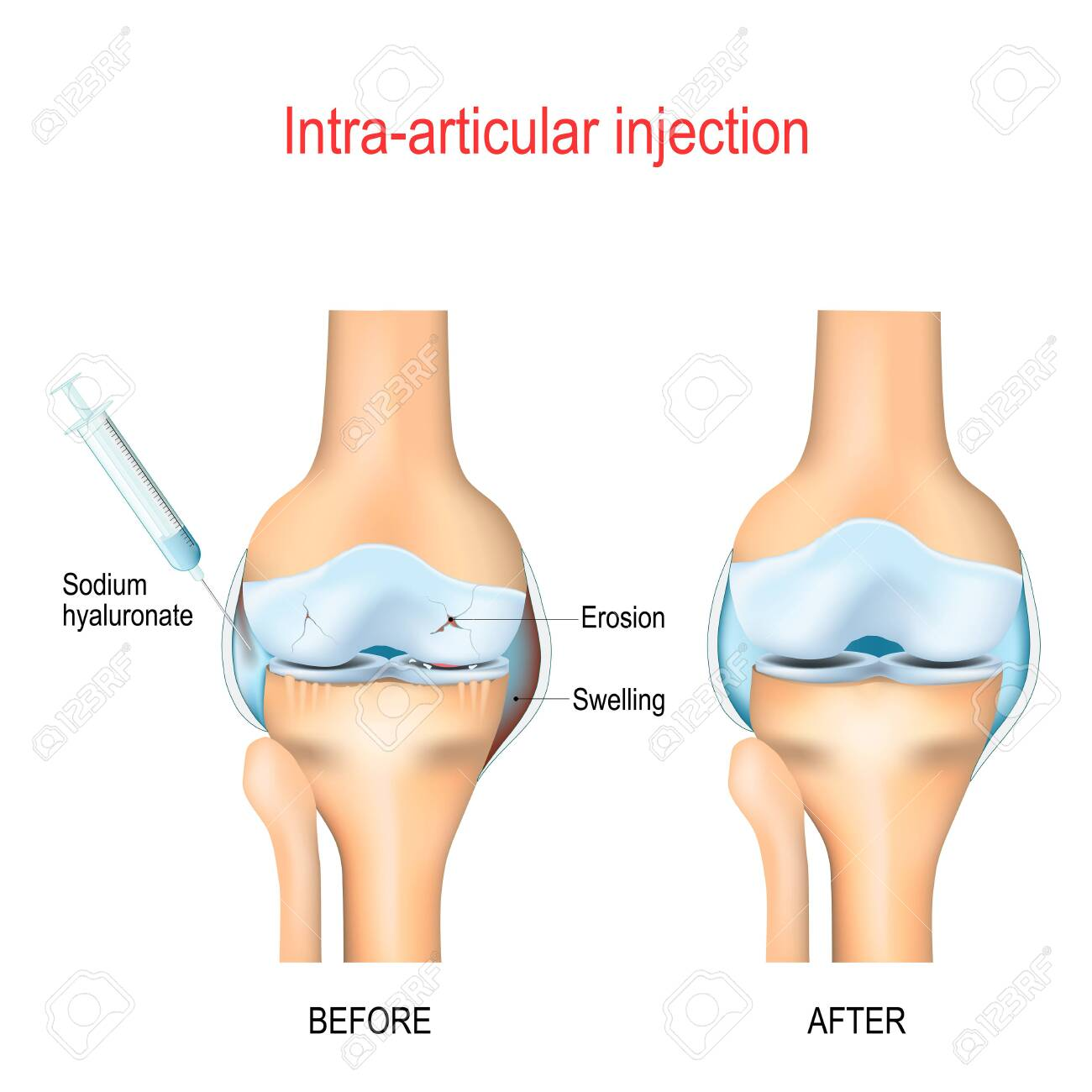 Hyaluronic acid injection for knee osteoarthritis. Medical Procedure. Eliminating Knee Pain with Injections - 151826360