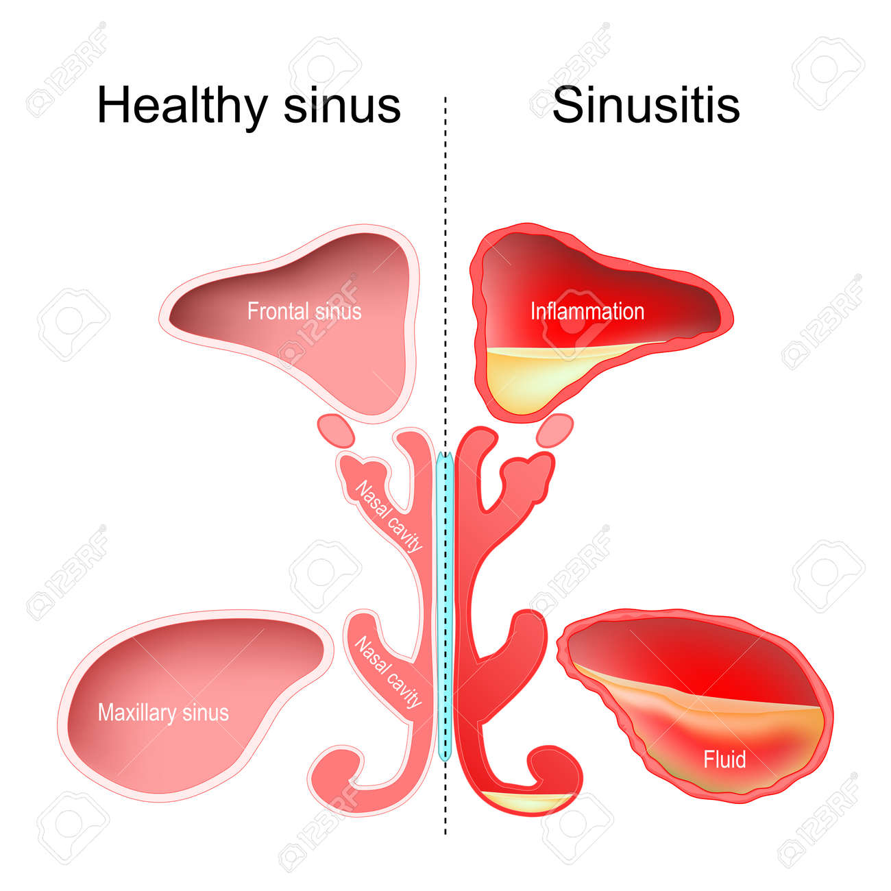 Sinusitis. Healthy nasal sinus and sinus with infection (inflammation and fluid). vector illustration - 170050008