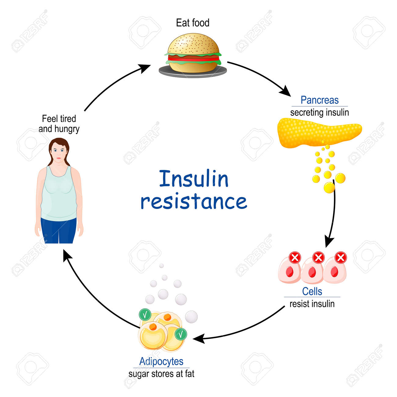 Insulin Resistance. cycle of insulin and glucose, before and after eat food. vector illustration. - 171348872