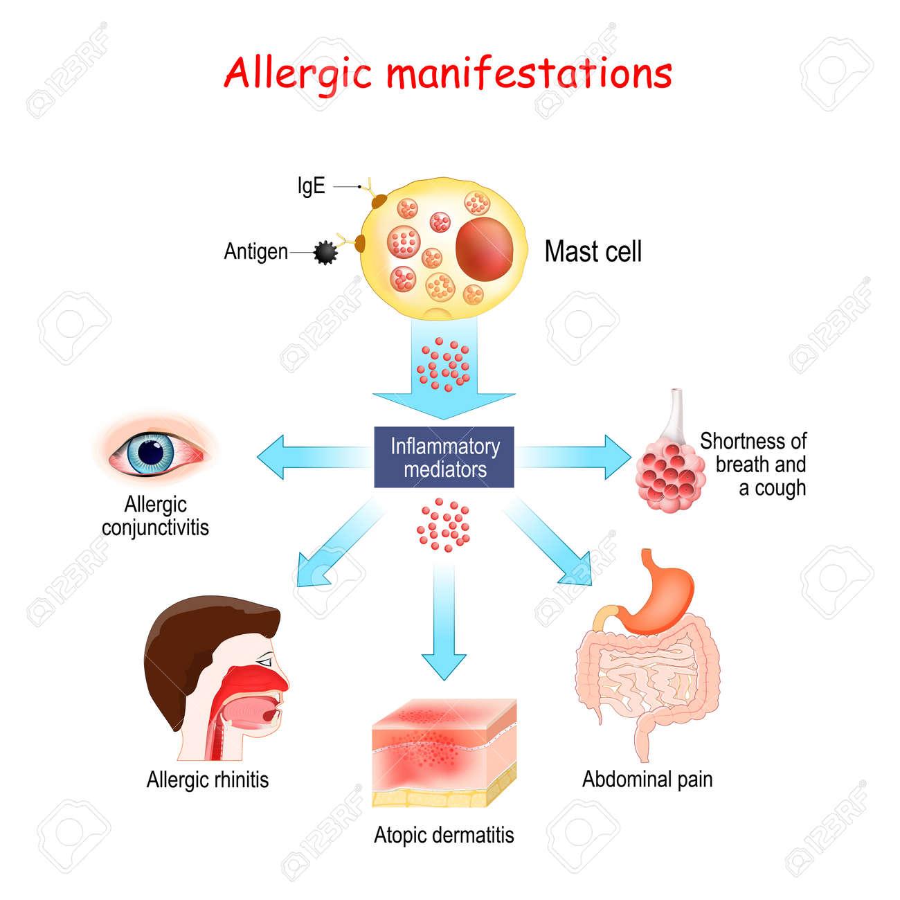 Food allergy and Allergic manifestations. Mast cell and Inflammatory mediators. Allergic conjunctivitis, atopic dermatitis, allergic rhinitis. Vector illustration. - 172063244