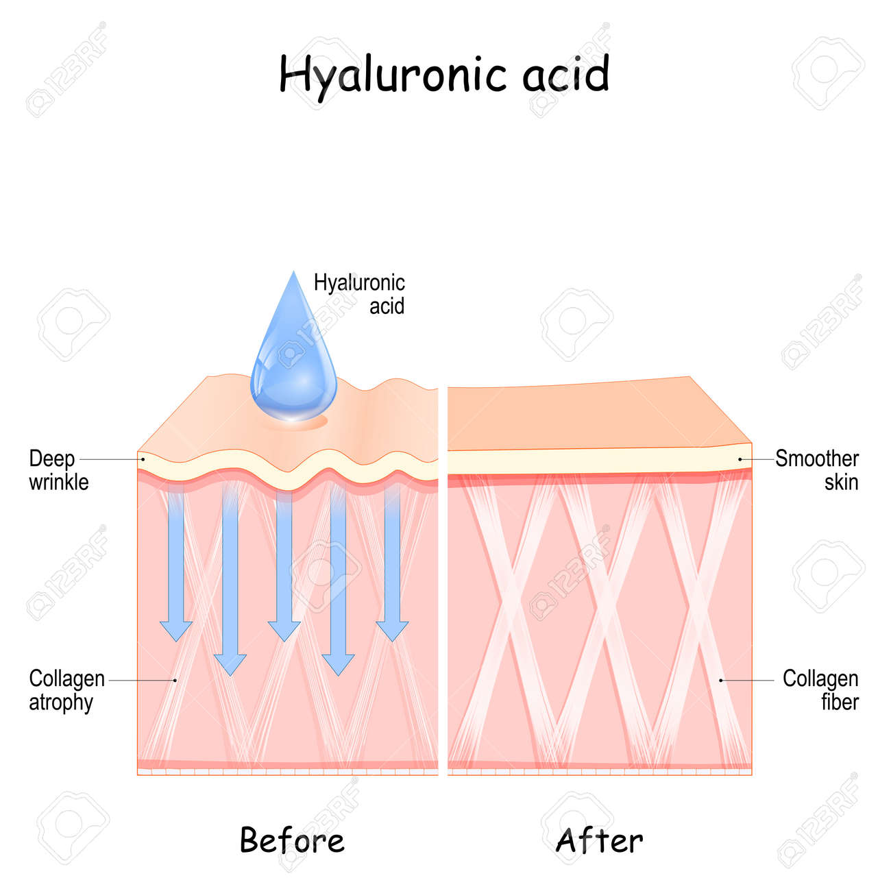Hyaluronic acid. skin Before and After Hyaluronic acid use. comparison and difference between skin with Collagen atrophy and Deep wrinkles and Smoother skin after cosmetic procedure - 173222409