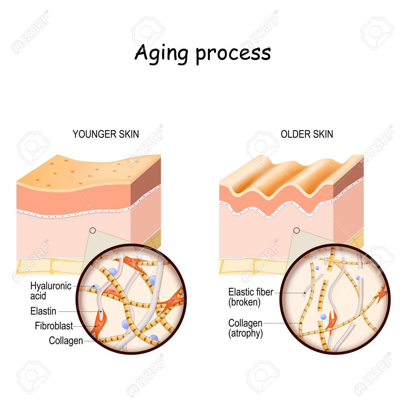 Aging process. comparison and difference between younger and older skin. Layers of the skin and close up of elastin, collagen fibers, hyaluronic acid, and fibroblast. - 172744484