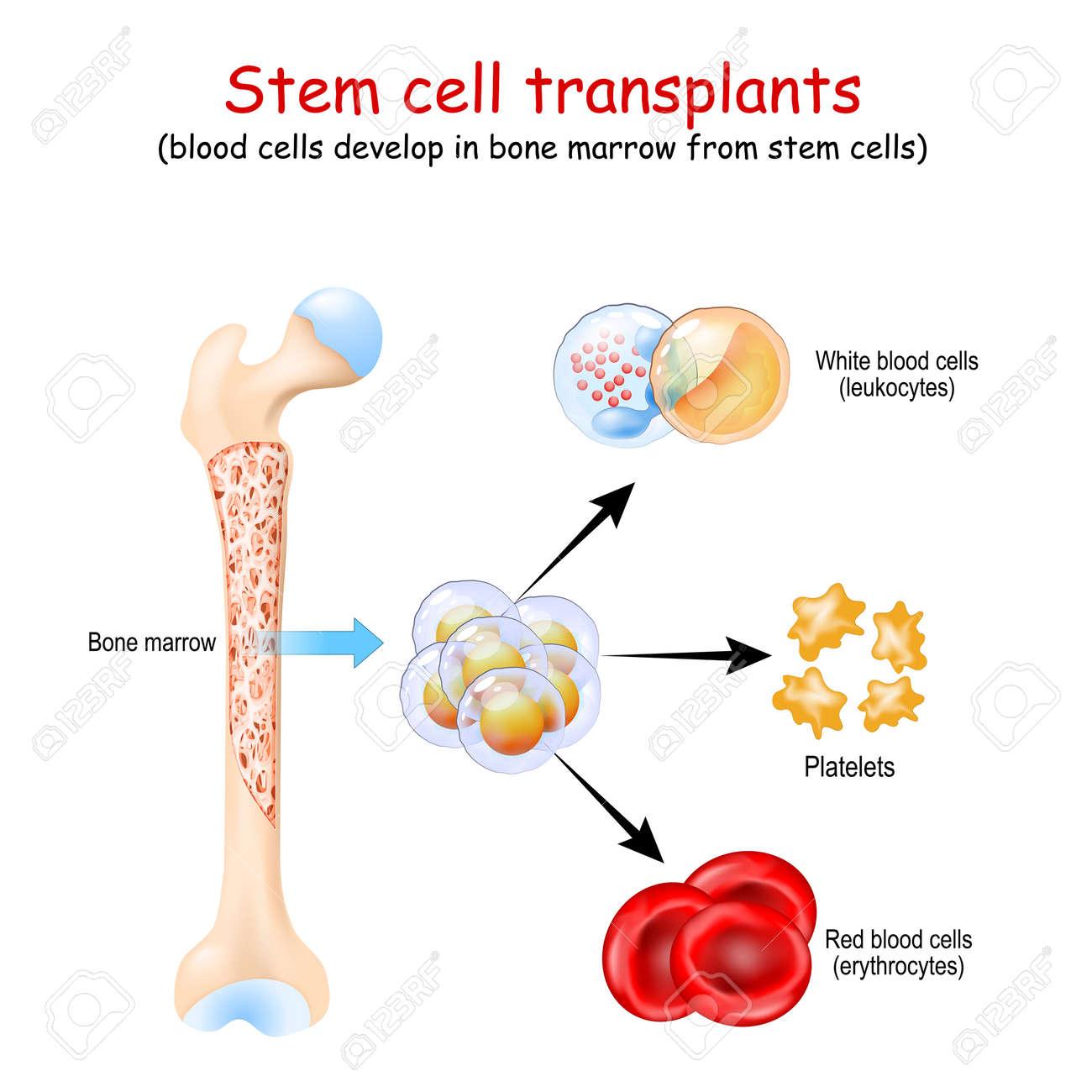Stem cell transplants. blood cells develop in bone marrow from stem cells. erythrocytes, leukocytes and Platelets - 173847952