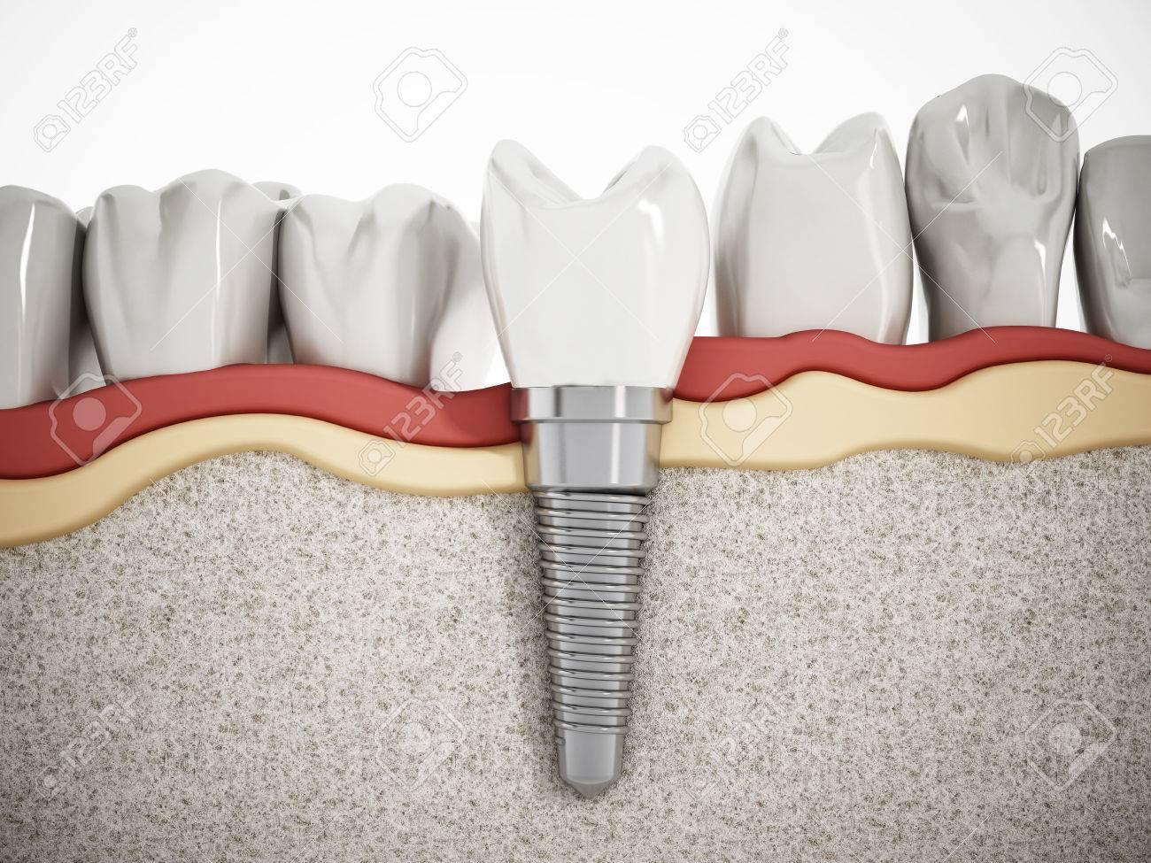 Illustration of teeth showing dental implant structure Stock Illustration - 52571983