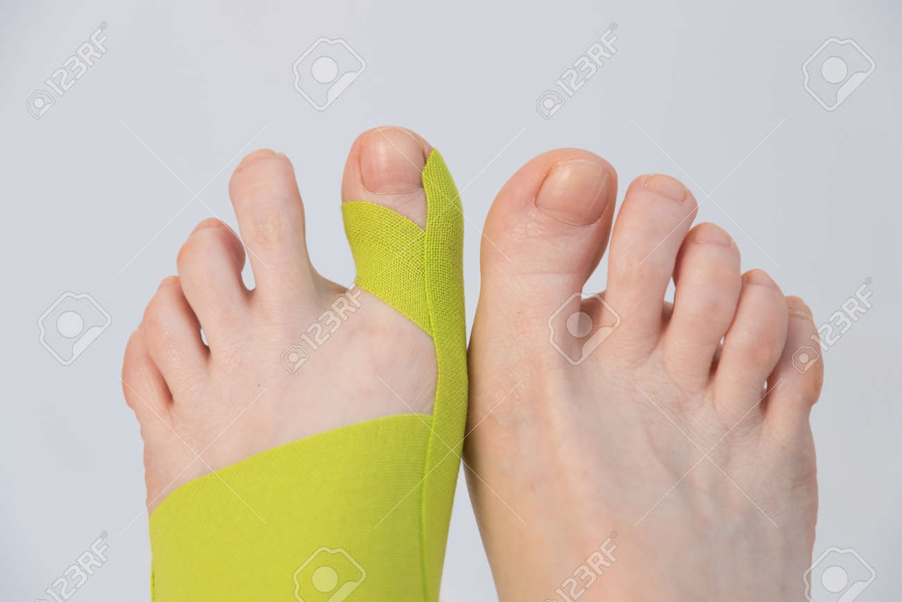 Correction of the big toe. Haliux valgus. Taping with flat feet. Taping when fingers are deformed. Innovative medicine. - 170118800
