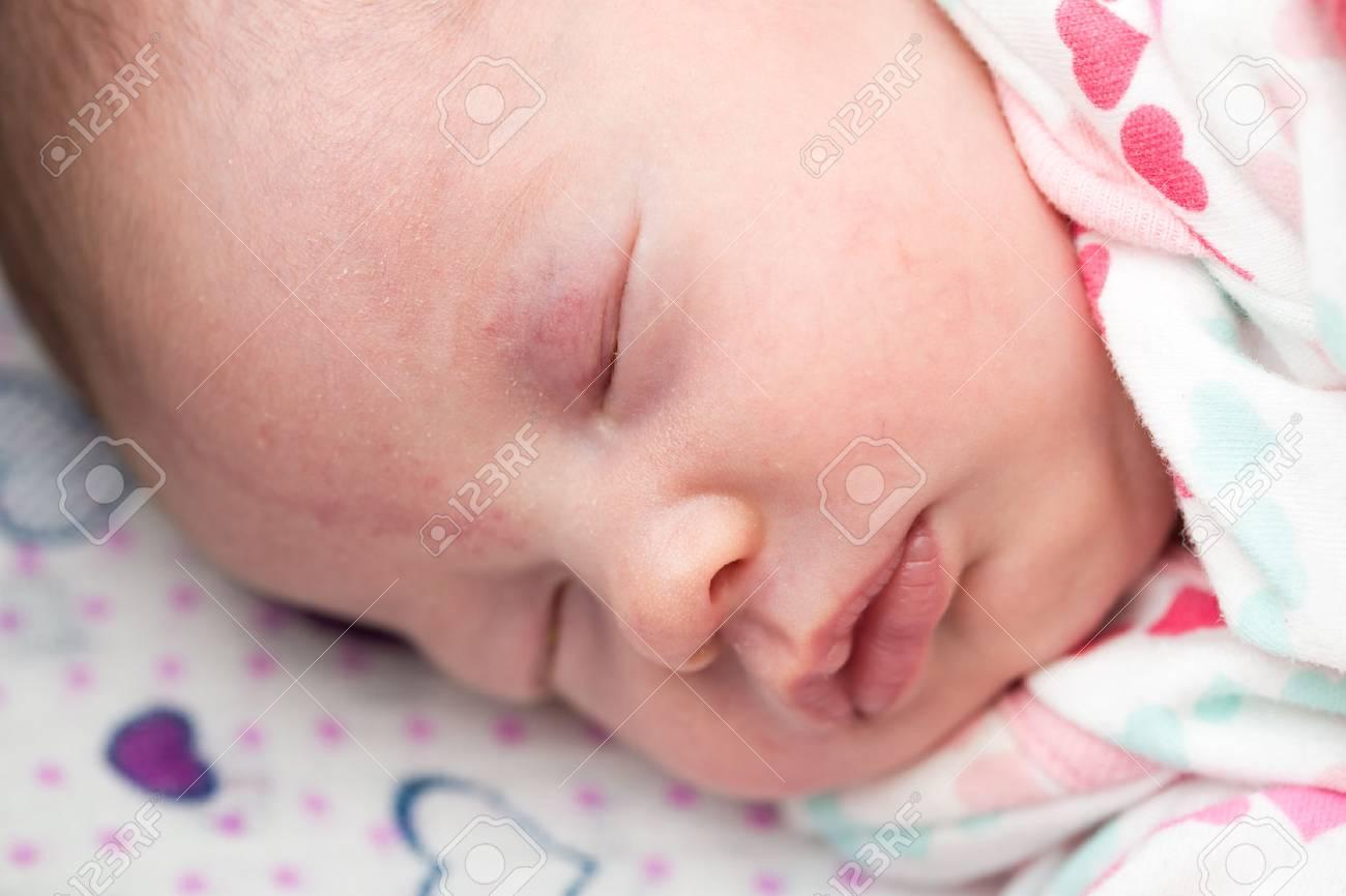 Closeup of a newborn baby sleeping in the crib, stork bite on
