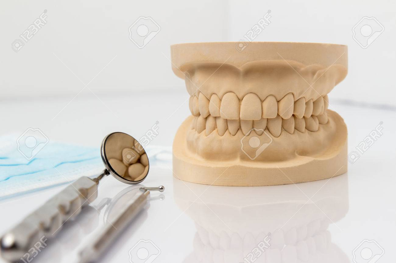 Dental mold showing the teeth of the upper and lower jaw with
