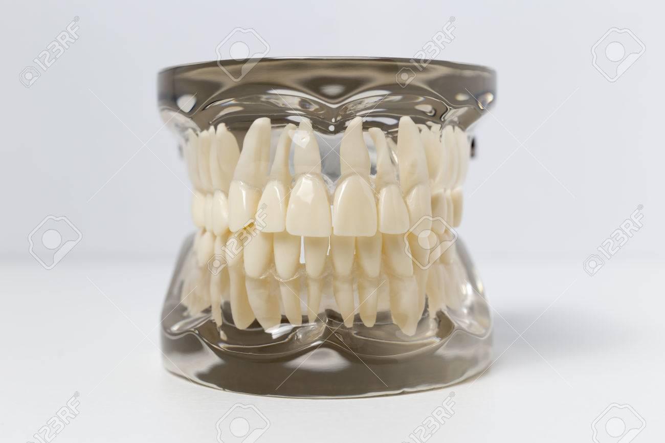 Cierre Para Arriba Del Modelo Prótesis Dentales Transparentes Que ...