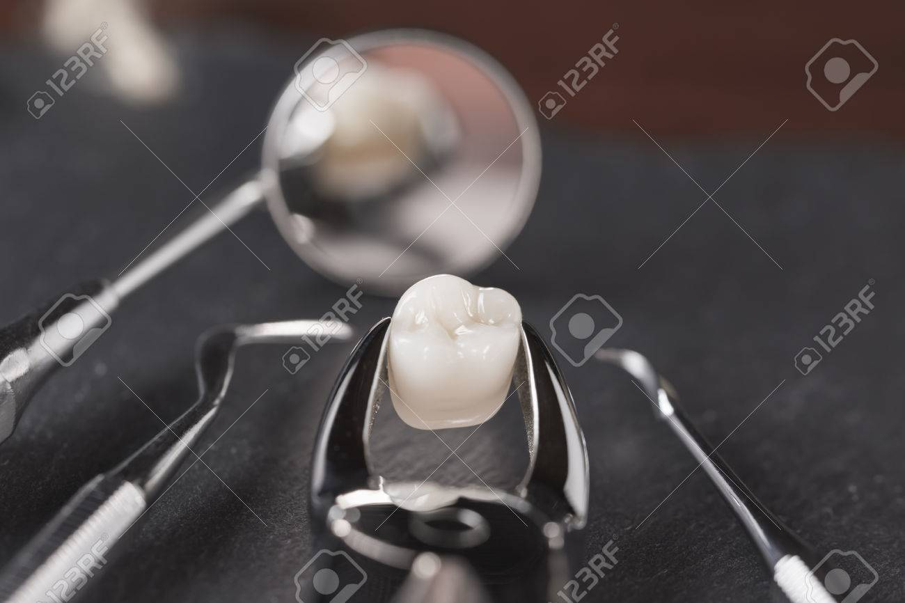 Tooth Extraction Concept With An Array Of Stainless Steel Dental Stock Photo Picture And Royalty Free Image Image 57974289