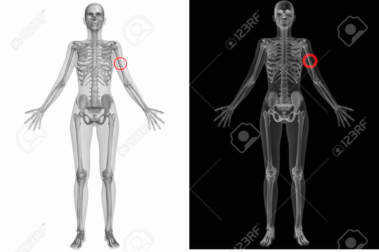 Human Anatomy Body - Broken Left Humerus Stock Photo, Picture And ...