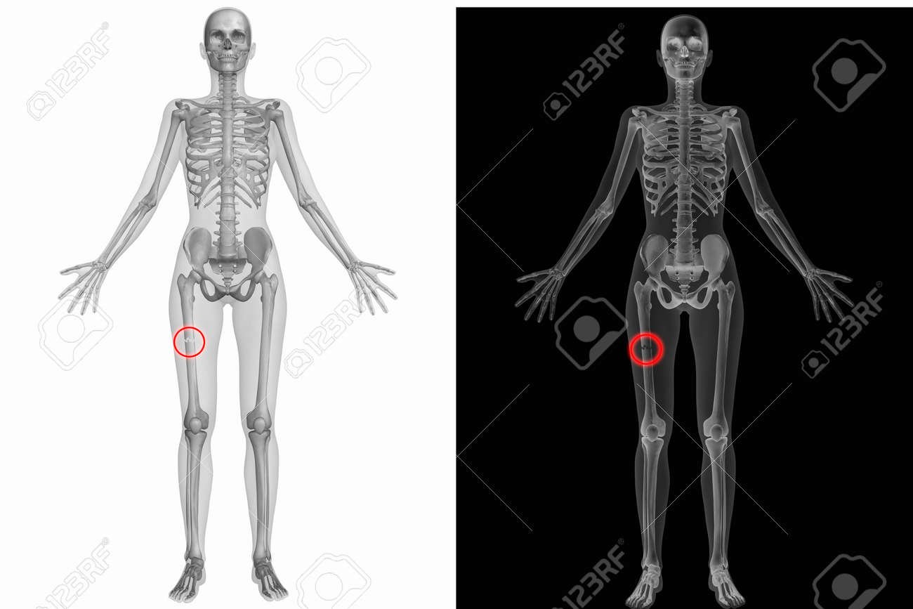 Human Anatomy Body Broken Right Femur Stock Photo Picture And