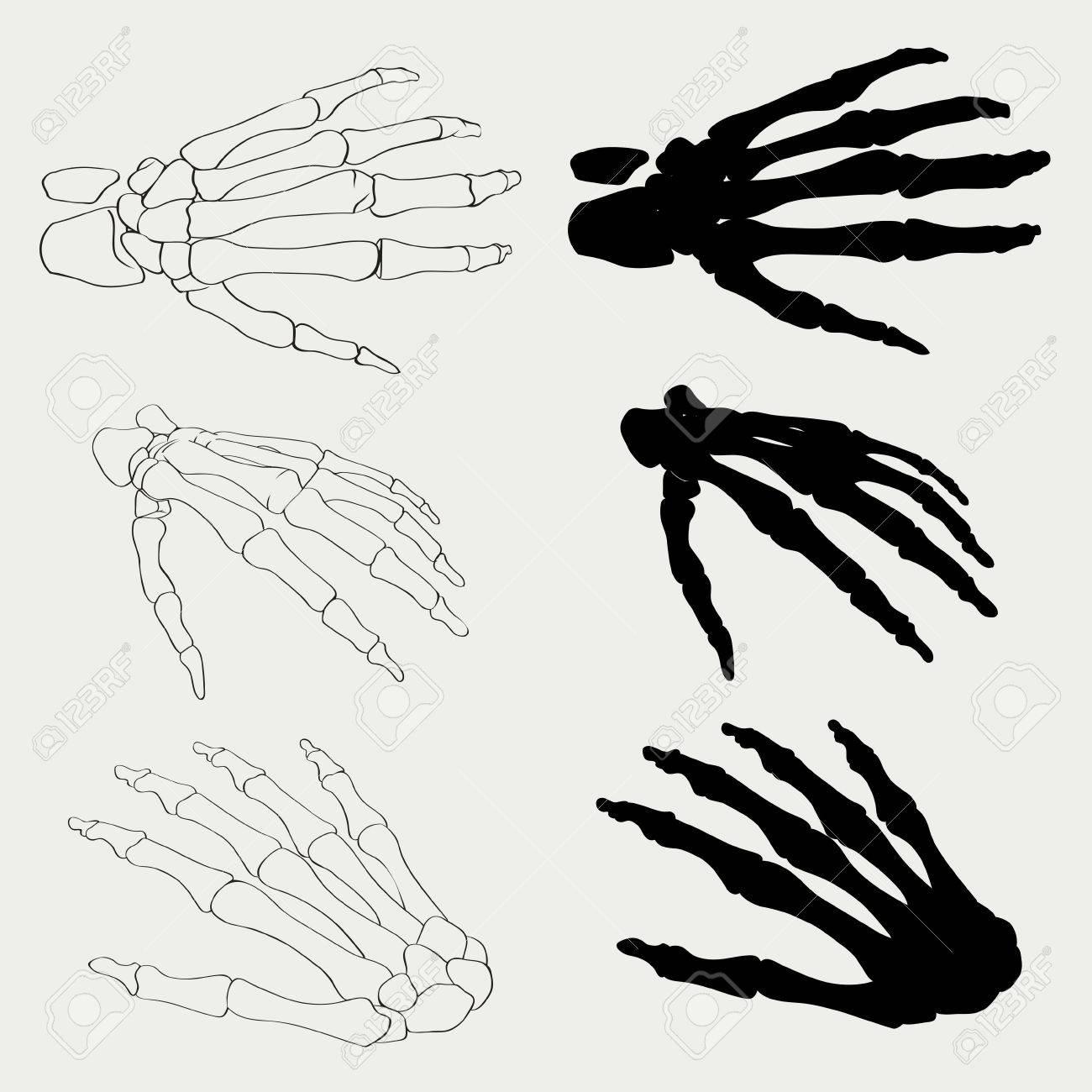 Geïsoleerd Menselijke Hand Botten Anatomie Vector Illustratie. Zwart ...