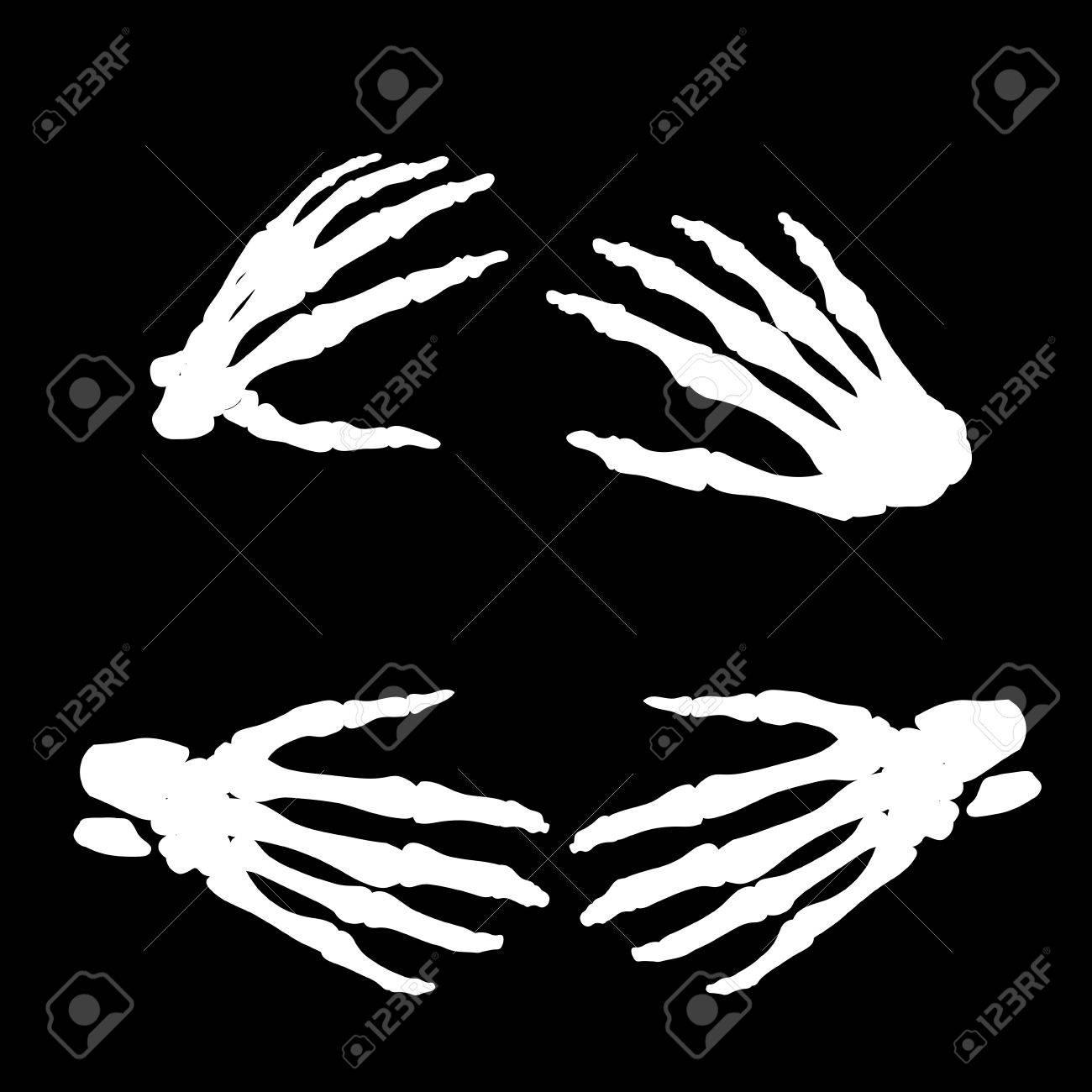 Human Hand Bones Anatomy Isolated Vector Illustration. Black ...
