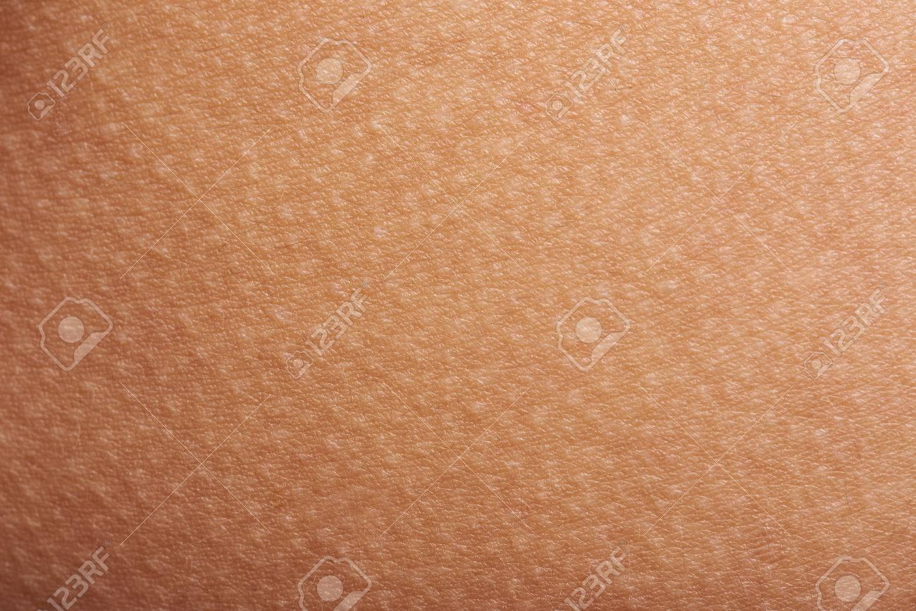 Goose bumps on human skin closeup. Tecture of skin with goose bumps - 69680579
